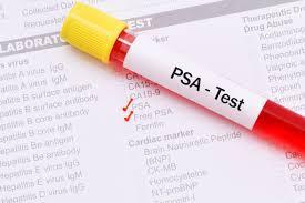 Nivelul-PSA-pentru-cancer-și-prostatită